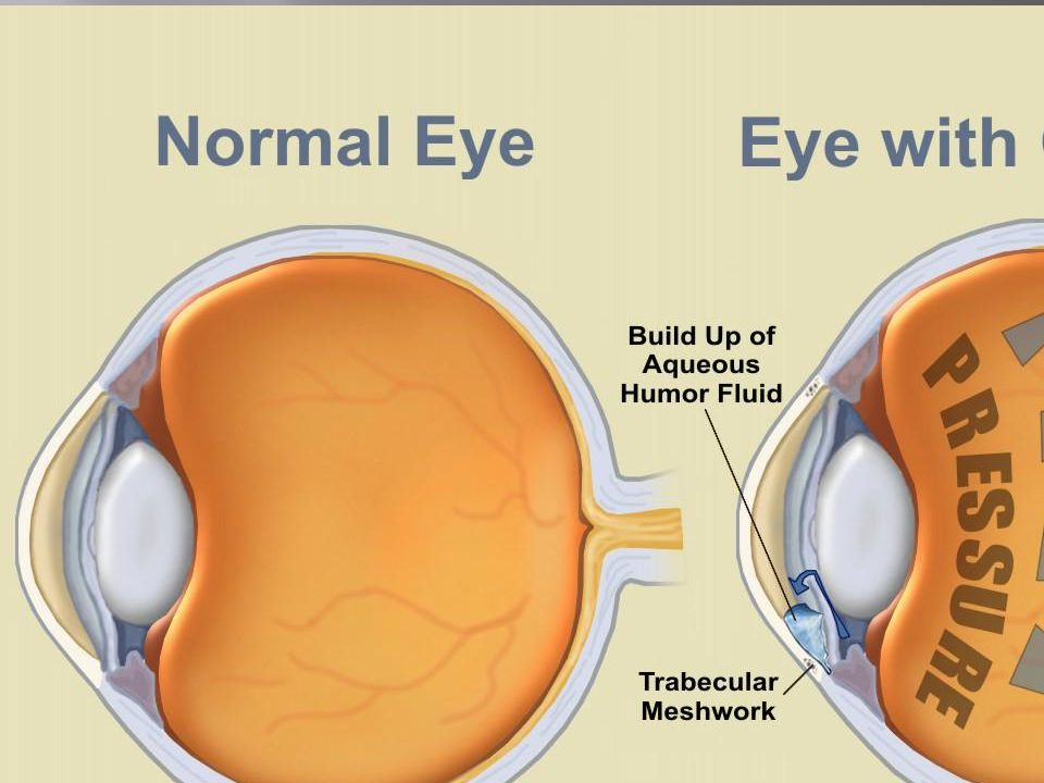  This is a disease of progressive optic neuropathy with loss of retinal neurons and their axons (nerve fiber layer) resulting in blindness if left un