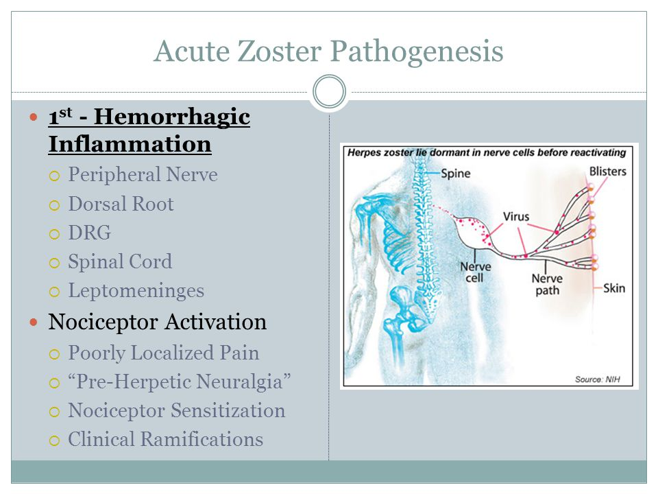 Acute Zoster Pathogenesis 1 st - Hemorrhagic Inflammation  Peripheral Nerve  Dorsal Root  DRG  Spinal Cord  Leptomeninges Nociceptor Activation  Poorly Localized Pain  Pre-Herpetic Neuralgia  Nociceptor Sensitization  Clinical Ramifications