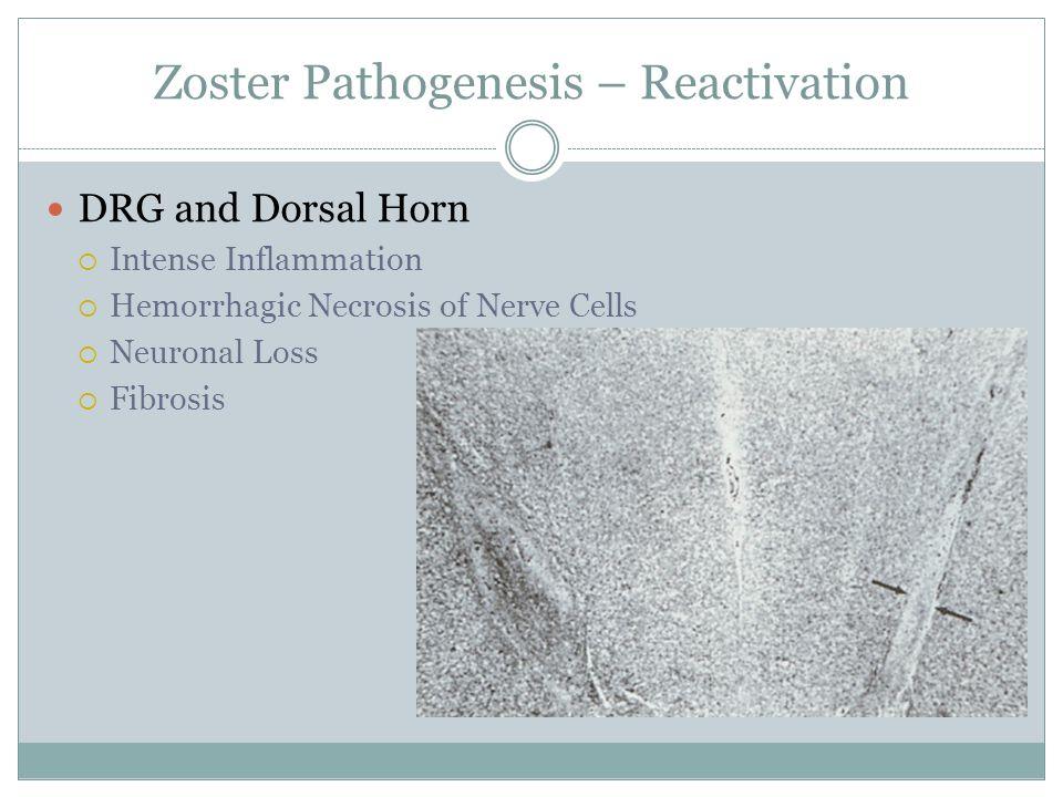 Zoster Pathogenesis – Reactivation DRG and Dorsal Horn  Intense Inflammation  Hemorrhagic Necrosis of Nerve Cells  Neuronal Loss  Fibrosis