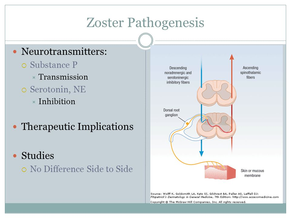 Zoster Pathogenesis Neurotransmitters:  Substance P  Transmission  Serotonin, NE  Inhibition Therapeutic Implications Studies  No Difference Side to Side