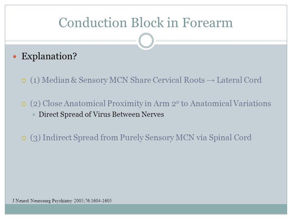 Conduction Block in Forearm Explanation.