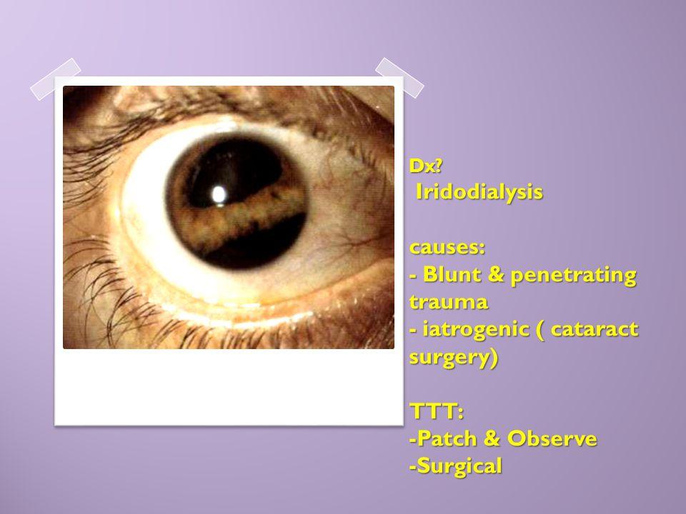 Dx? Iridodialysis causes: - Blunt & penetrating trauma - iatrogenic ( cataract surgery) TTT: -Patch & Observe -Surgical