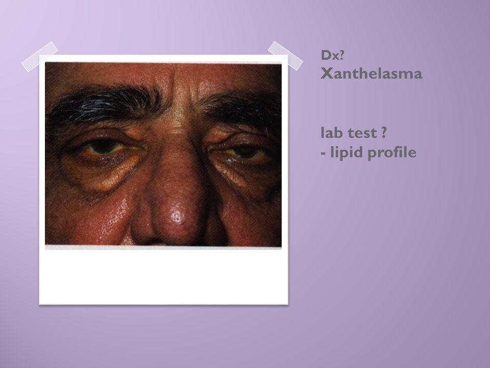 Dx? Xanthelasma lab test ? - lipid profile