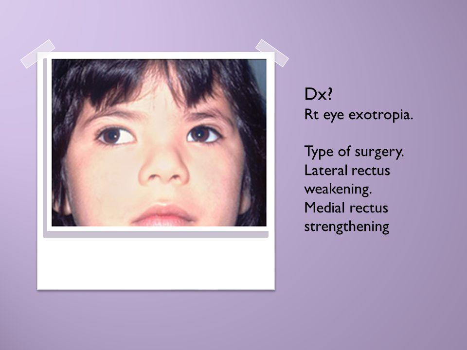 Dx? Rt eye exotropia. Type of surgery. Lateral rectus weakening. Medial rectus strengthening