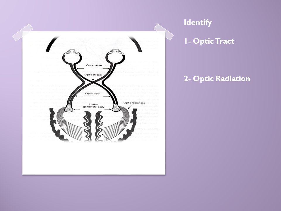 Identify 1- Optic Tract 2- Optic Radiation