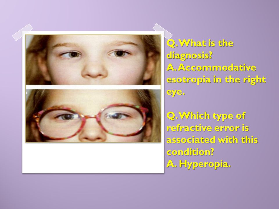 Q. What is the diagnosis? A. Accommodative esotropia in the right eye. Q. Which type of refractive error is associated with this condition? A. Hyperop