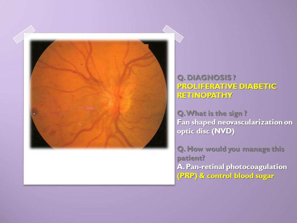 Q. DIAGNOSIS ? PROLIFERATIVE DIABETIC RETINOPATHY Q. What is the sign ? Fan shaped neovascularization on optic disc (NVD) Q. How would you manage this
