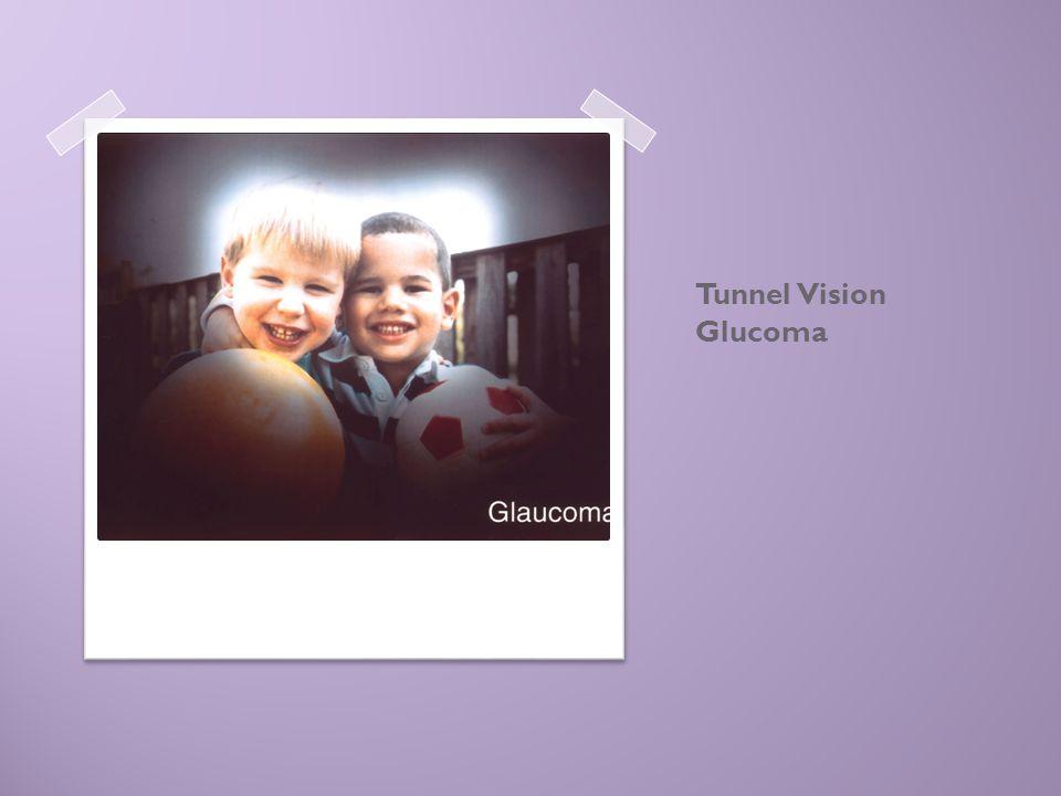 Tunnel Vision Glucoma