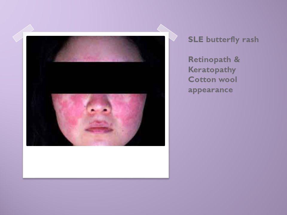 SLE butterfly rash Retinopath & Keratopathy Cotton wool appearance
