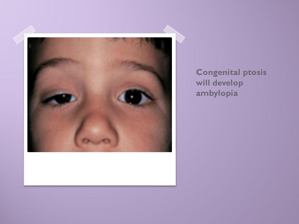 Congenital ptosis will develop ambylopia