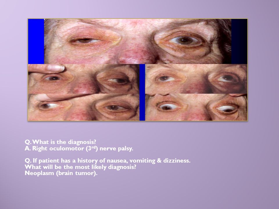 Q. What is the diagnosis? A. Right oculomotor (3 rd ) nerve palsy. Q. If patient has a history of nausea, vomiting & dizziness. What will be the most