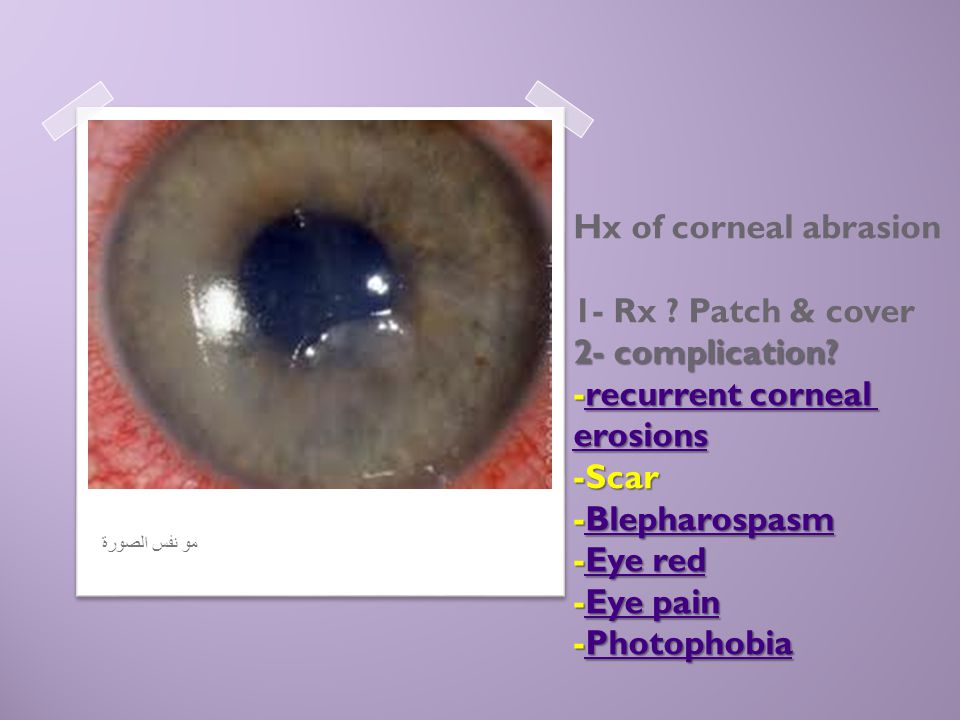 2- complication? -recurrent corneal erosions -Scar -Blepharospasm -Eye red -Eye pain -Photophobia Hx of corneal abrasion 1- Rx ? Patch & cover 2- comp
