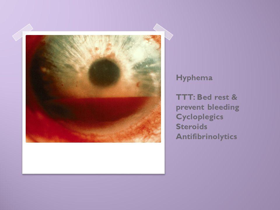 Hyphema TTT: Bed rest & prevent bleeding Cycloplegics Steroids Antifibrinolytics