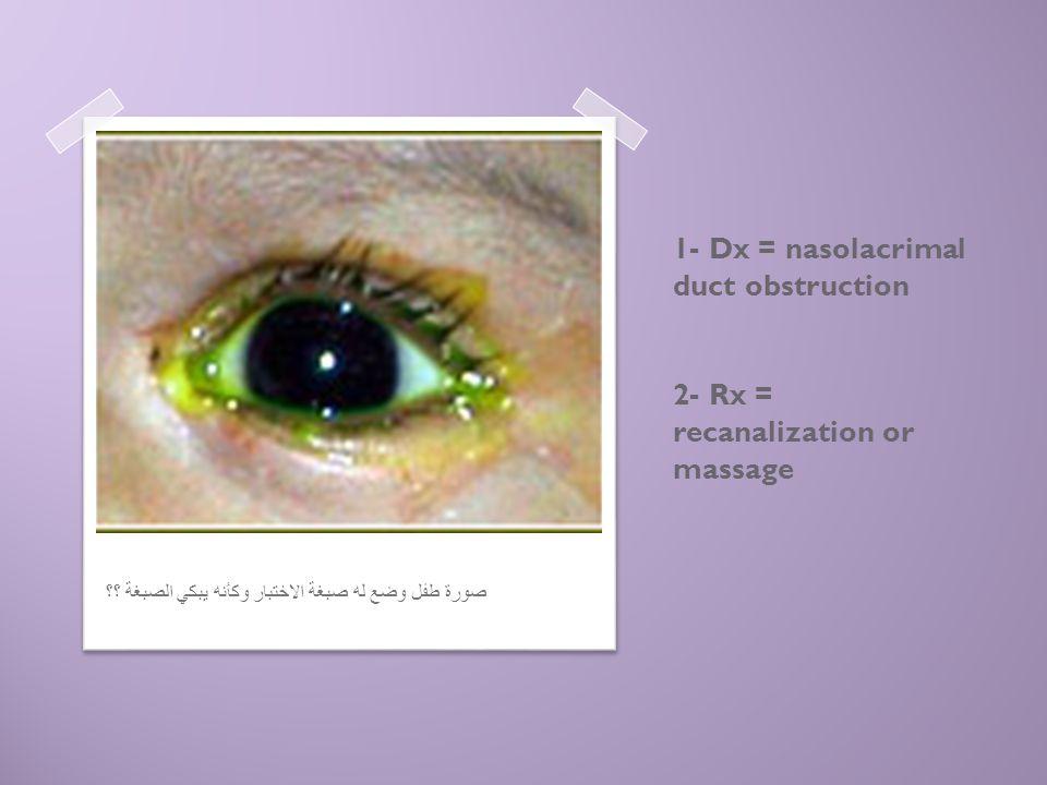 1- Dx = nasolacrimal duct obstruction 2- Rx = recanalization or massage صورة طفل وضع له صبغة الاختبار وكأنه يبكي الصبغة ؟؟