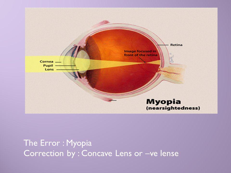 The Error : Myopia Correction by : Concave Lens or –ve lense
