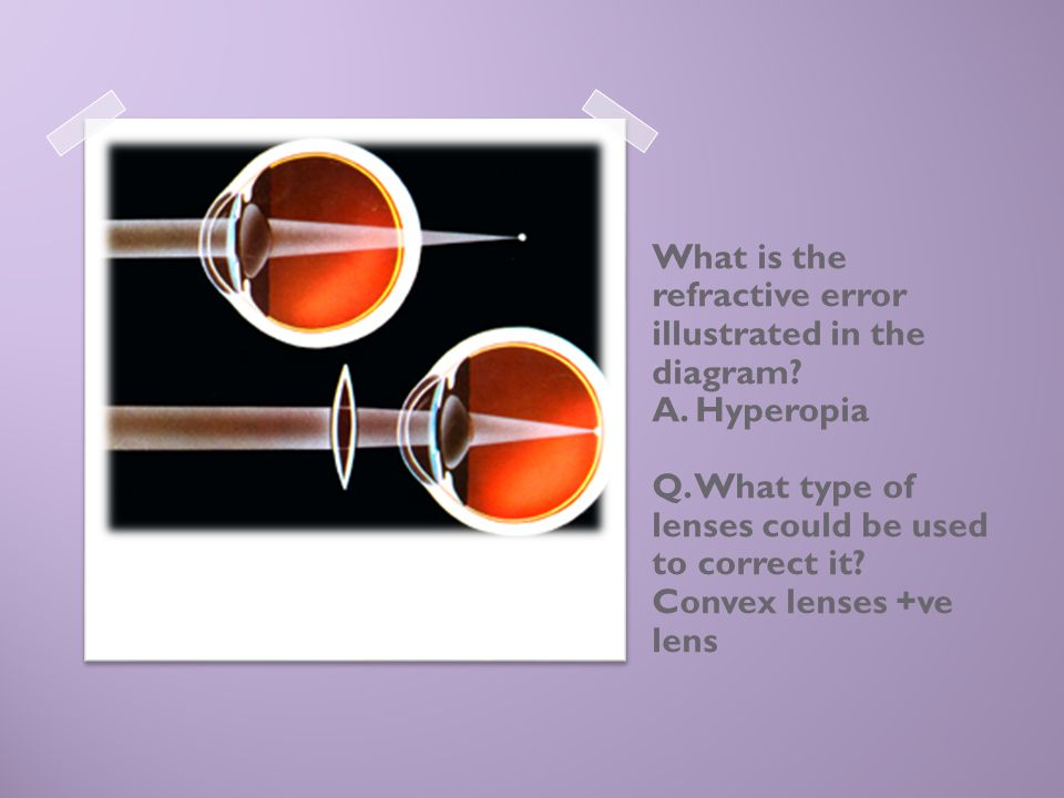 What is the refractive error illustrated in the diagram? A. Hyperopia Q. What type of lenses could be used to correct it? Convex lenses +ve lens