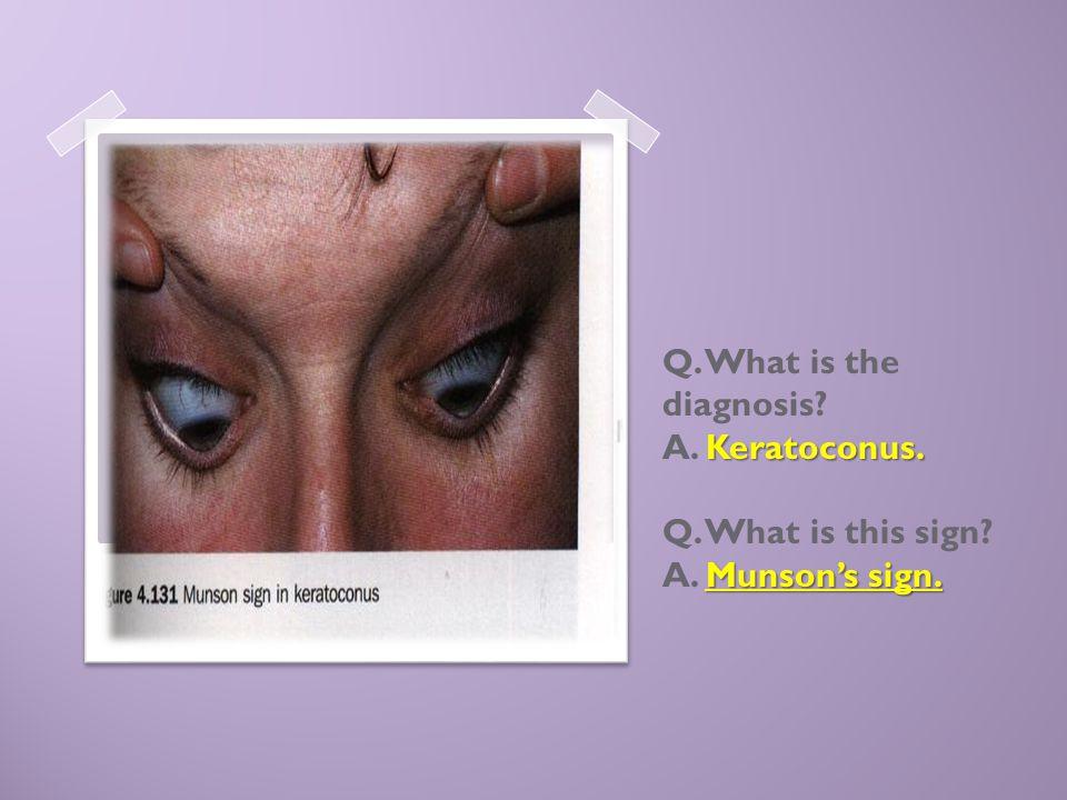 Keratoconus. Munson's sign. Q. What is the diagnosis? A. Keratoconus. Q. What is this sign? A. Munson's sign.