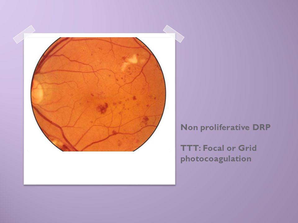 Non proliferative DRP TTT: Focal or Grid photocoagulation