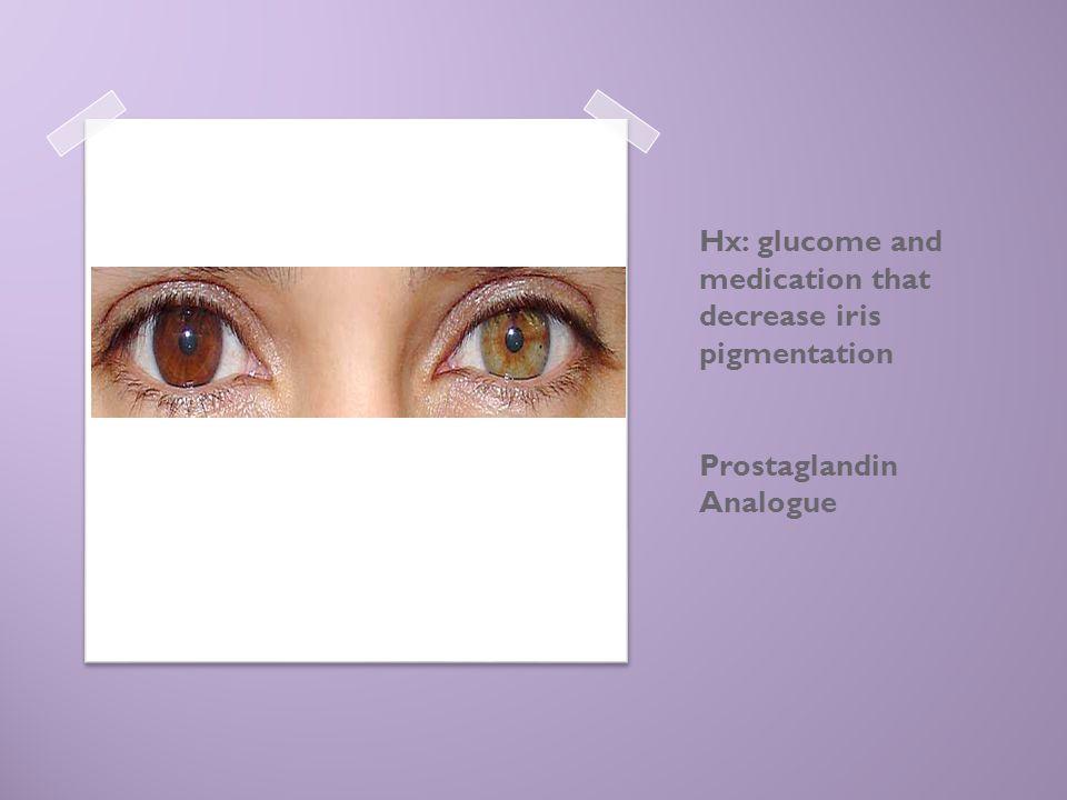 Hx: glucome and medication that decrease iris pigmentation Prostaglandin Analogue