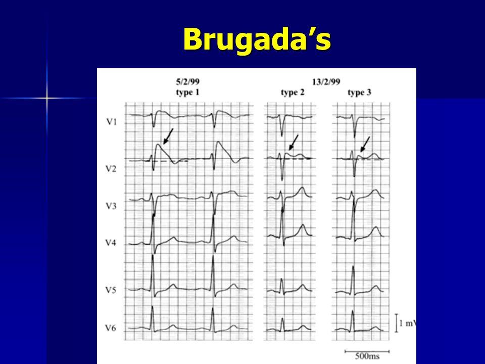 Brugada's