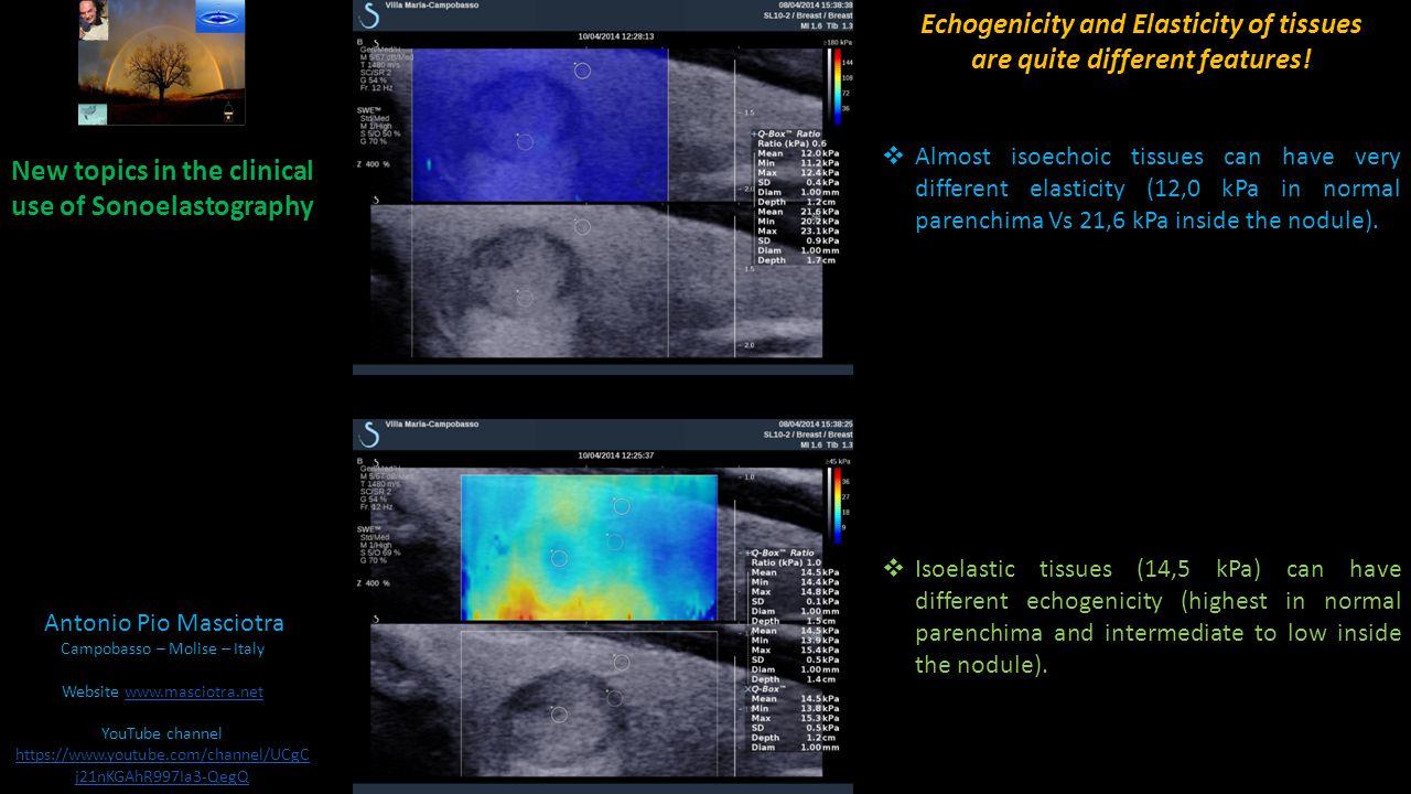 New topics in the clinical use of Sonoelastography Antonio Pio Masciotra Campobasso – Molise – Italy Website www.masciotra.netwww.masciotra.net YouTube channel https://www.youtube.com/channel/UCgCj21nKGAhR997Ia3-QegQ