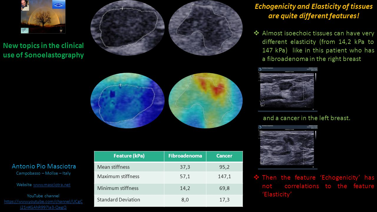 Echogenicity and Elasticity of tissues are quite different features.