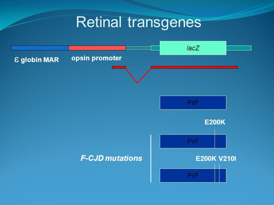 Retinal transgenes opsin promoter  globin MAR lacZ PrP E200K E200K V210I F-CJD mutations