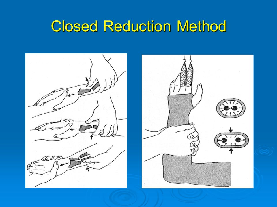 Closed Reduction Method