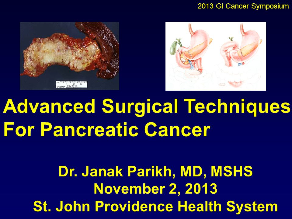 Advanced Surgical Techniques For Pancreatic Cancer Dr. Janak Parikh, MD, MSHS November 2, 2013 St. John Providence Health System 2013 GI Cancer Sympos