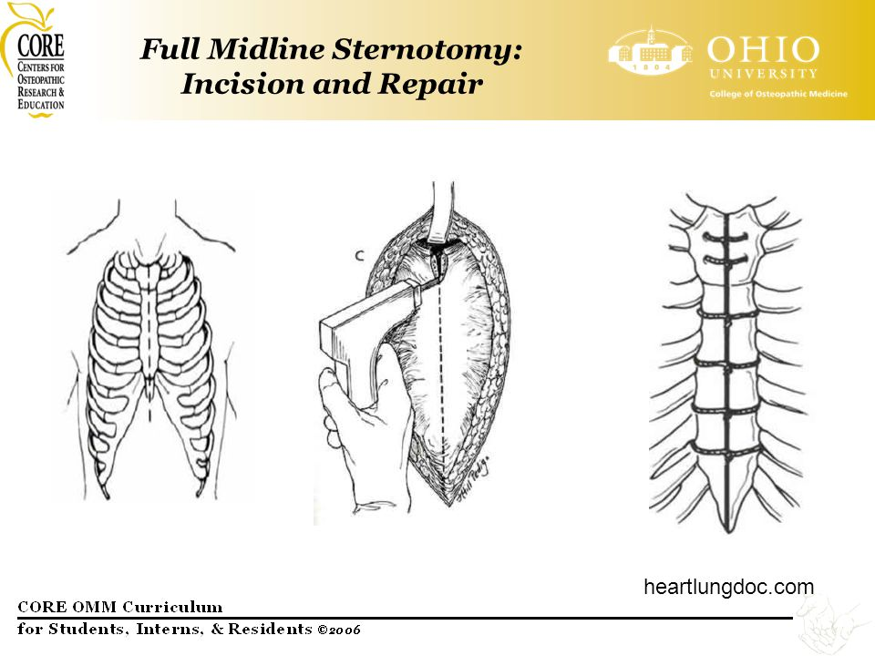 Full Midline Sternotomy: Incision and Repair heartlungdoc.com