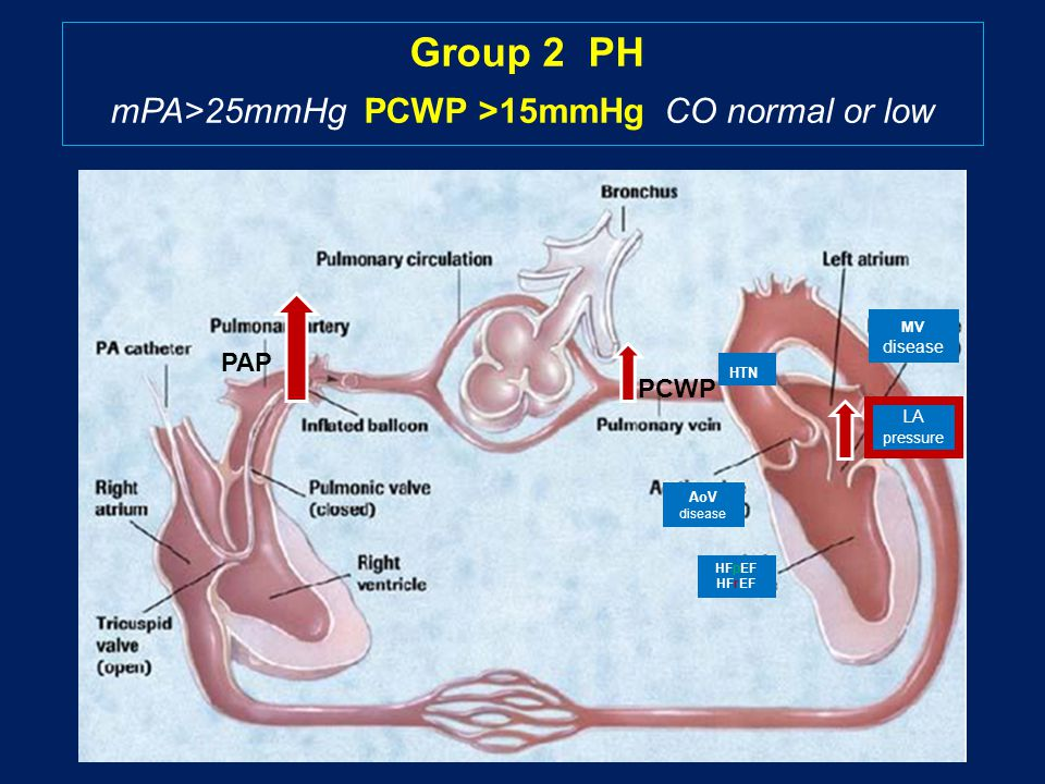 HTN HFpEF HFrEF MV disease AoV disease LA pressure CHF causes Pulmonary Hypertension leading to Right Ventricular Failure PCWP Group 2 PH mPA>25mmHg PCWP >15mmHg CO normal or low PAPPAP