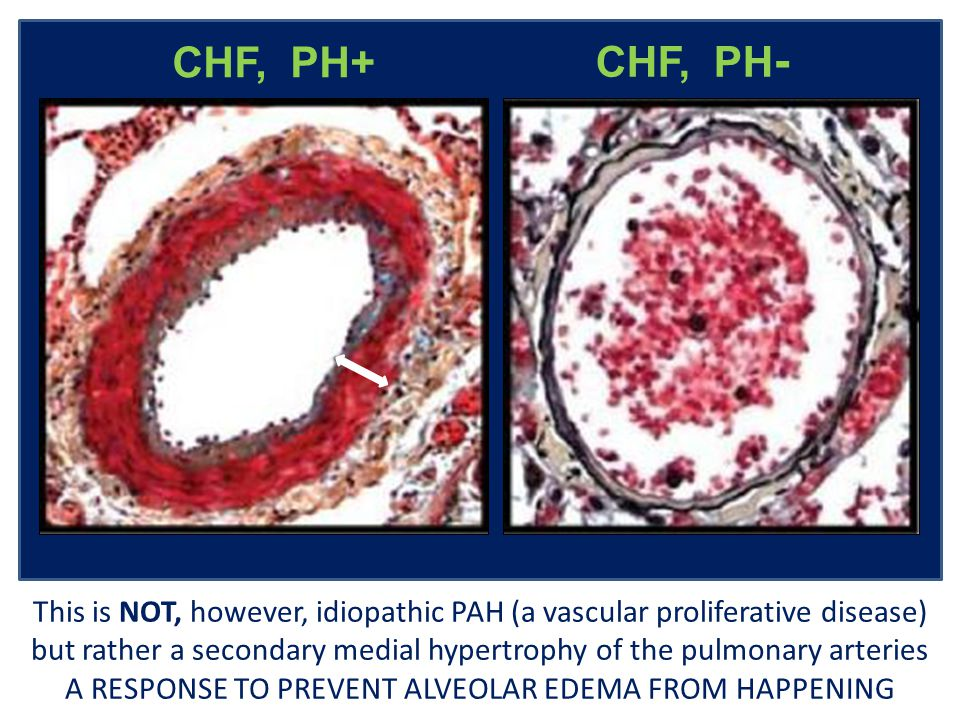 CHF, PH - CHF, PH+ Marked medial hypertrophy of a muscular pulmonary artery in a patient with CHF, compared to another of similar size with minimal medial thickening in a patient with CHF but not pulmonary hypertension This is NOT, however, idiopathic PAH (a vascular proliferative disease) but rather a secondary medial hypertrophy of the pulmonary arteries A RESPONSE TO PREVENT ALVEOLAR EDEMA FROM HAPPENING