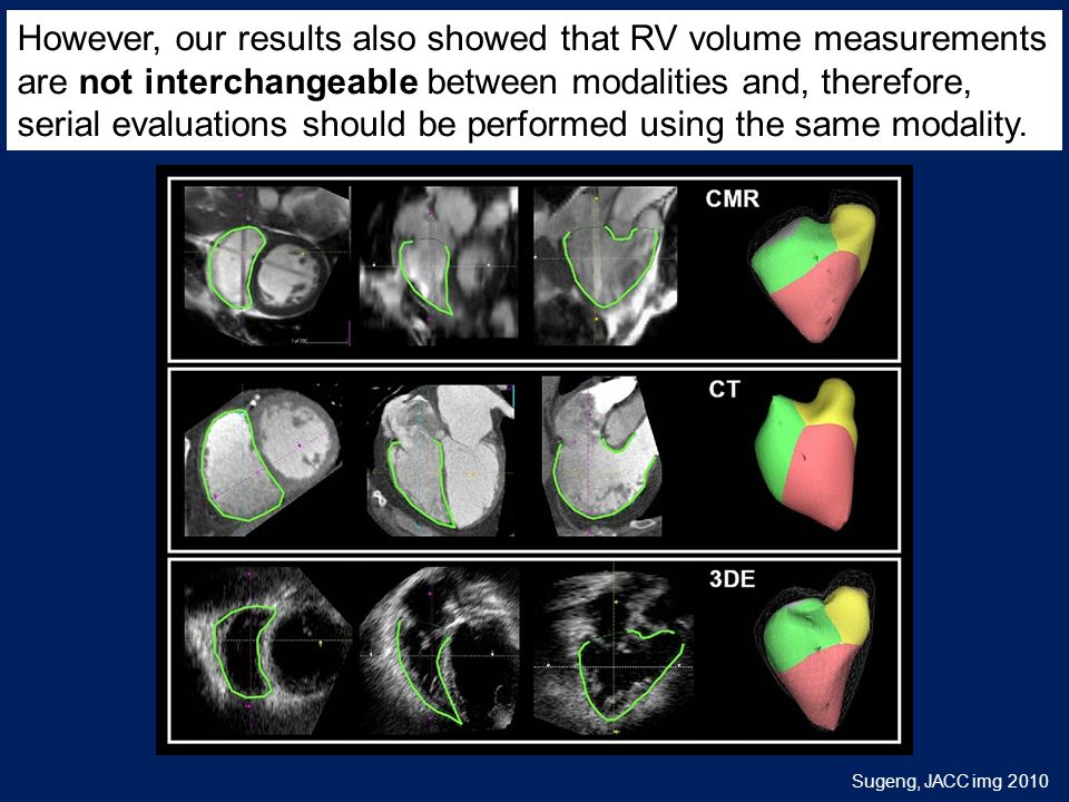Sugeng, J A C C i m g 2 0 1 0 Multimodality Comparison of Quantitative Volumetric Analysis of the Right Ventricle However, our results also showed that RV volume measurements are not interchangeable between modalities and, therefore, serial evaluations should be performed using the same modality.