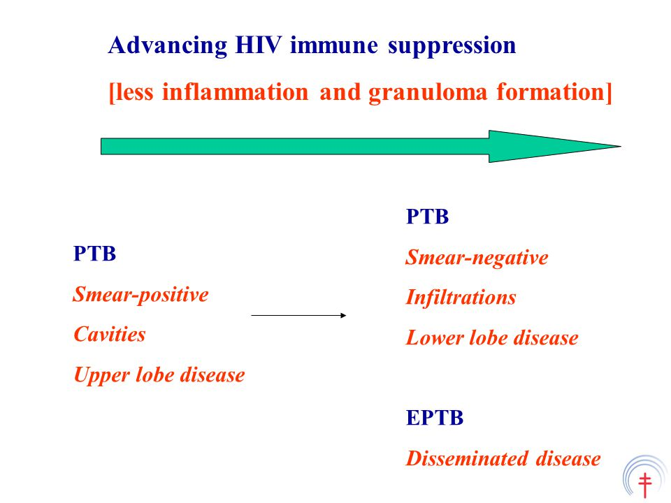Advancing HIV immune suppression [less inflammation and granuloma formation] PTB Smear-positive Cavities Upper lobe disease PTB Smear-negative Infiltrations Lower lobe disease EPTB Disseminated disease