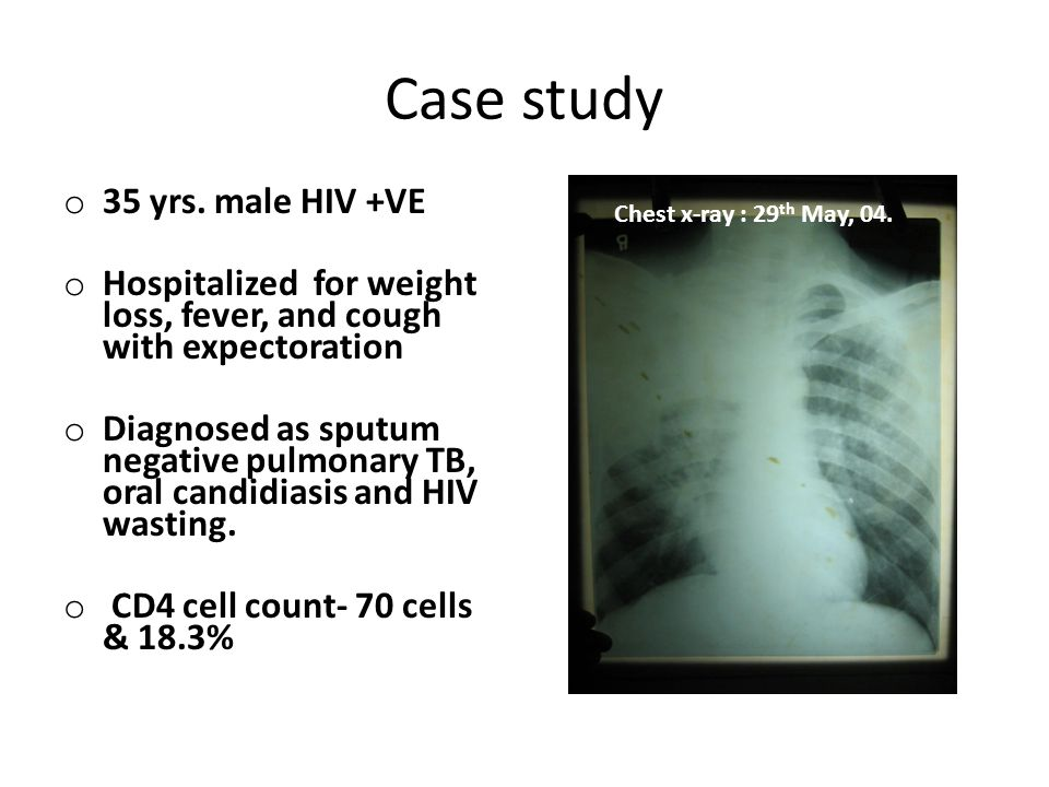 Case study o 35 yrs. male HIV +VE o Hospitalized for weight loss, fever, and cough with expectoration o Diagnosed as sputum negative pulmonary TB, ora