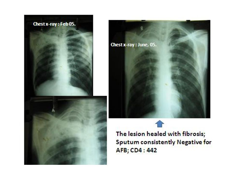 Chest x-ray : June, 05. Chest x-ray : Feb 05.