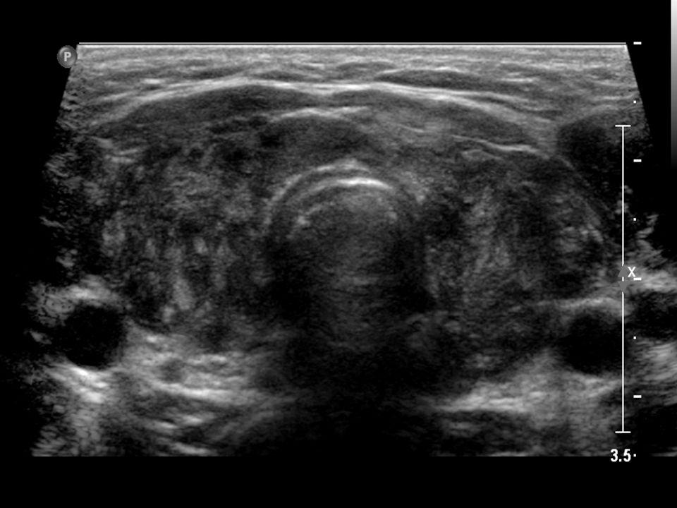 Hashimoto's Thyroiditis (early)