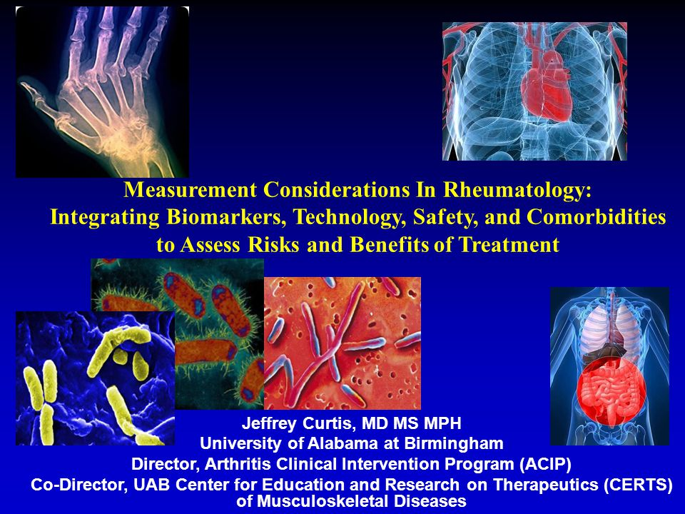 Vectra™ DA algorithm score was not affected by common comorbidities in a study of 512 patients Subgroupn (%)CRPCDAIDAS28CRP Vectra DA Algorithm Score Hypertension 223 (44)0.981.32*1.14*1.05 Osteoarthritis 172 (34)0.881.171.131.05 Osteoporotic bone fractures 131 (26)0.911.051.021.05 Degenerative joint disease 113 (22)1.201.181.11*1.07 Diabetes 73 (14)1.011.091.041.07* Current smoker 67 (13)1.461.45*1.17*0.91 Asthma 50 (10)1.281.111.05 12 Ratio of Disease Activity Measure's Median Value Between RA Patients With and Without Common † Comorbidities Shadick NA, et al.