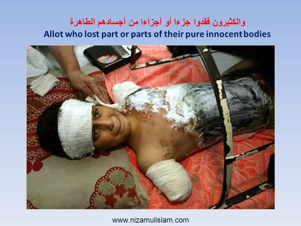 والكثيرون فقدوا جزءا أو أجزاءا من أجسادهم الطاهرة Allot who lost part or parts of their pure innocent bodies www.nizamulislam.com
