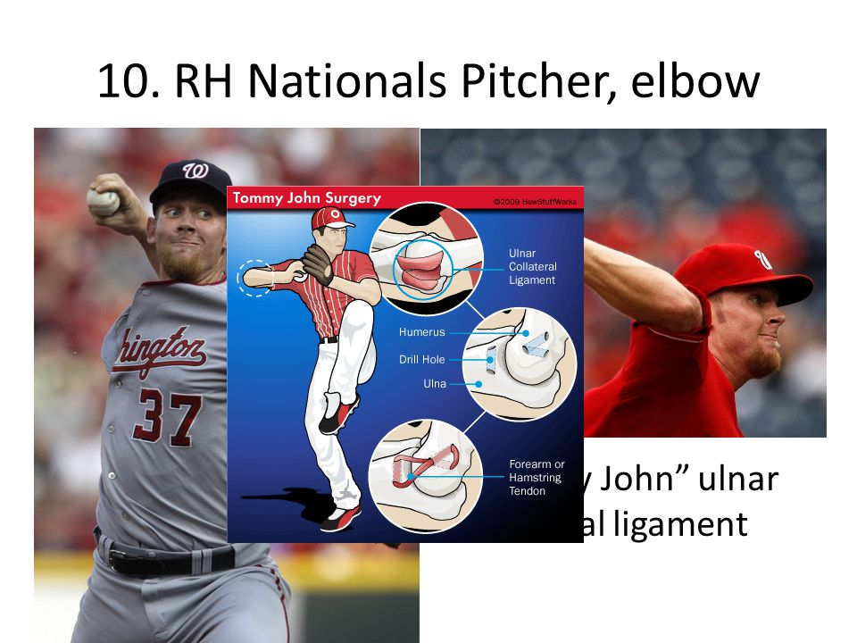 10. RH Nationals Pitcher, elbow Tommy John ulnar collateral ligament