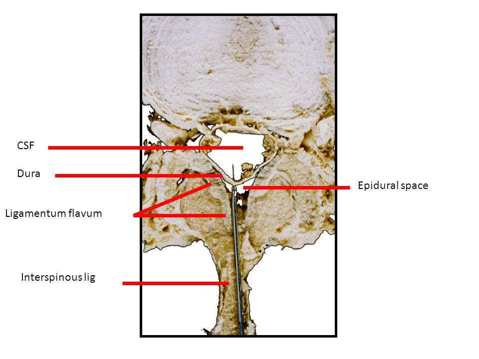 Interspinous lig Epidural space Dura CSF Ligamentum flavum