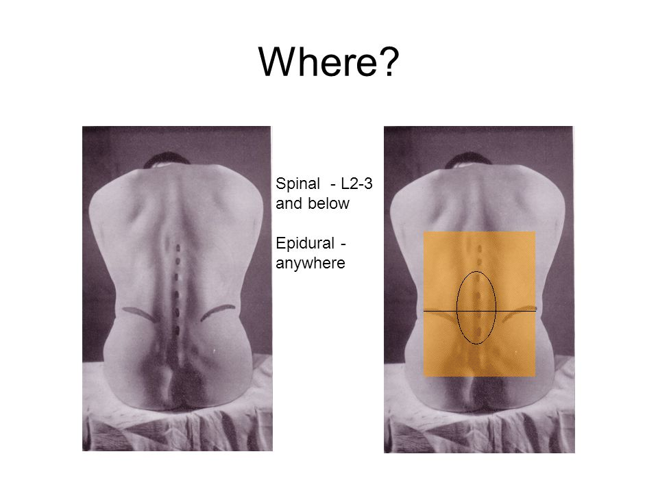 Where? Spinal - L2-3 and below Epidural - anywhere