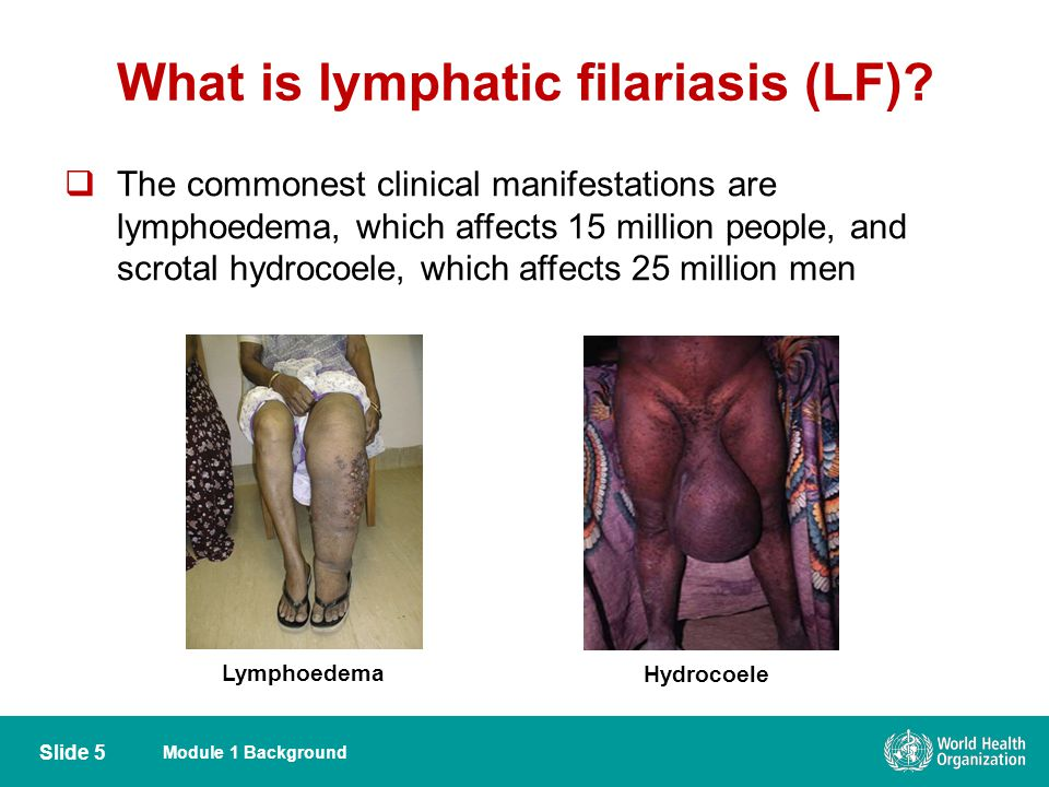 Module 1 Background Slide 5  The commonest clinical manifestations are lymphoedema, which affects 15 million people, and scrotal hydrocoele, which af