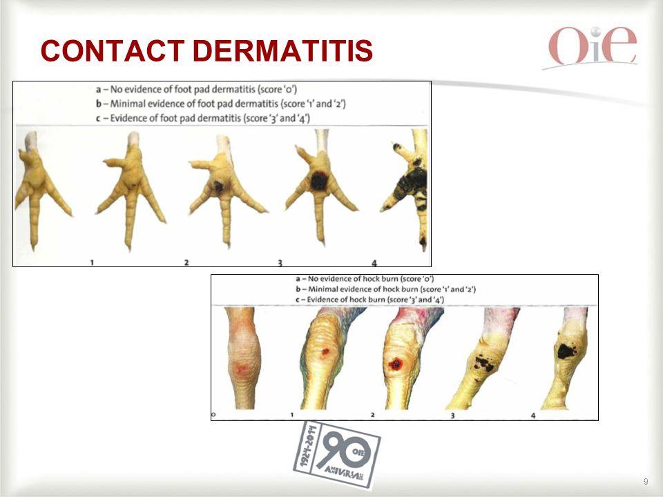 9 CONTACT DERMATITIS