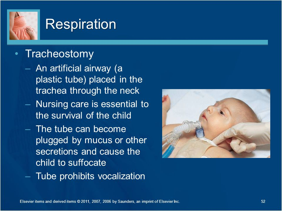 Respiration Tracheostomy –An artificial airway (a plastic tube) placed in the trachea through the neck –Nursing care is essential to the survival of t
