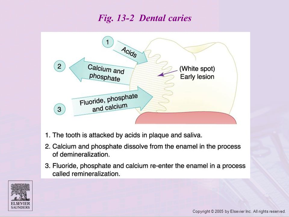 Copyright © 2005 by Elsevier Inc. All rights reserved. Fig. 13-2 Dental caries