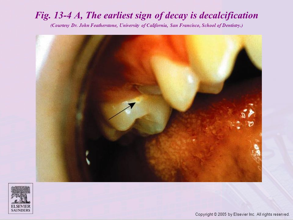 Copyright © 2005 by Elsevier Inc. All rights reserved. Fig. 13-4 A, The earliest sign of decay is decalcification (Courtesy Dr. John Featherstone, Uni