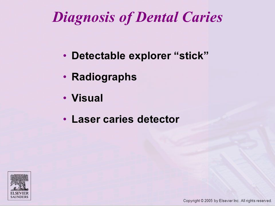 "Copyright © 2005 by Elsevier Inc. All rights reserved. Diagnosis of Dental Caries Detectable explorer ""stick"" Radiographs Visual Laser caries detector"