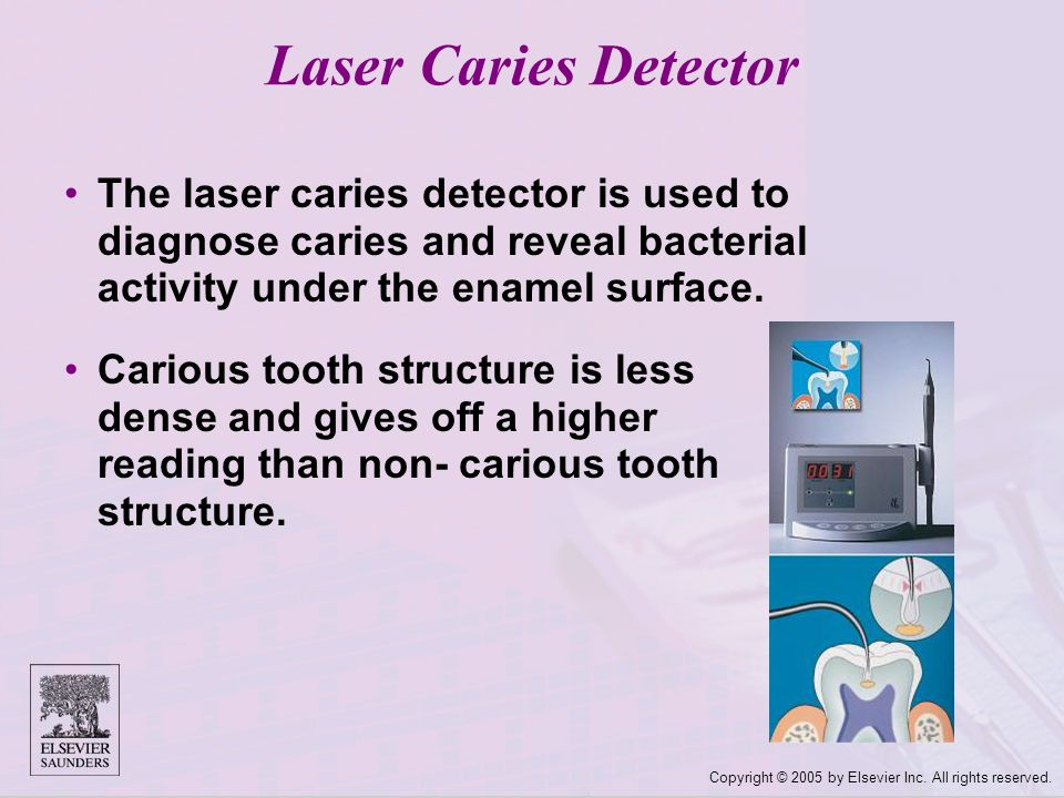 Copyright © 2005 by Elsevier Inc. All rights reserved. Laser Caries Detector The laser caries detector is used to diagnose caries and reveal bacterial