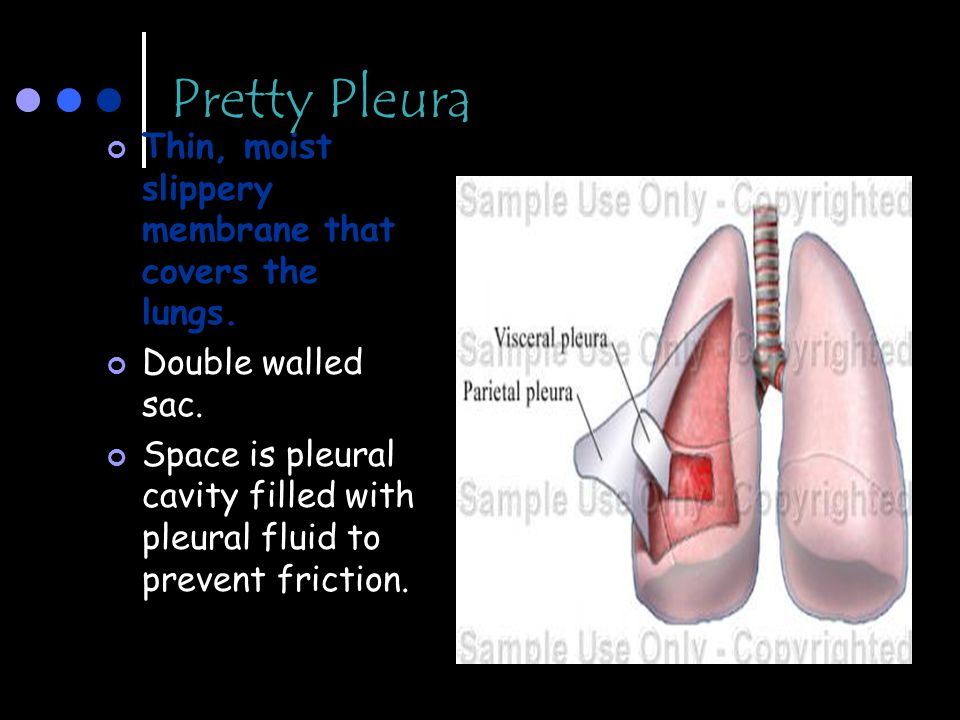 Pretty Pleura Thin, moist slippery membrane that covers the lungs. Double walled sac. Space is pleural cavity filled with pleural fluid to prevent fri